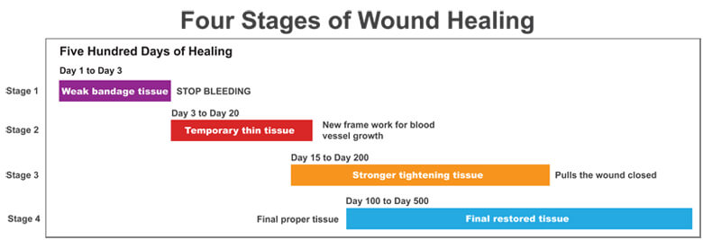 A Diagram of the Four Stages of Healing Over Time