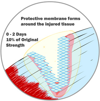 A Protective Membrane Forms Around the Injured Tissue