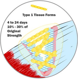 Type 1 Tissue Begins to Form